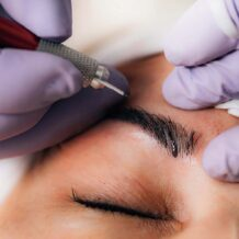 Can I get Microblading after tattoo removal?